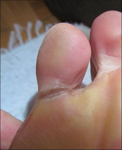 cracked skin between toes