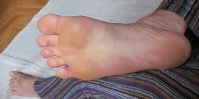 My foot: not a thing of great beauty, but it's free of cracks and callouses!